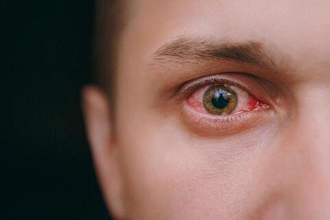 با خشکی چشم مرتبط با ماسک چه کنیم؟