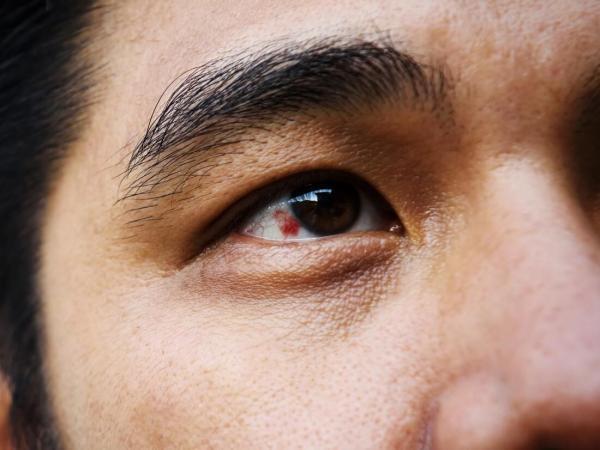 بیماری هایی که علائم آن در چشم ها ظاهر می شوند
