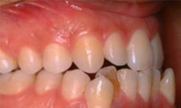 با دندان اضافی چه کار کنیم؟